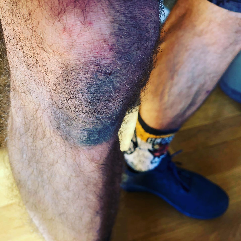 Efectos colaterales de la #covid_19 : el síndrome de la rodillas negras