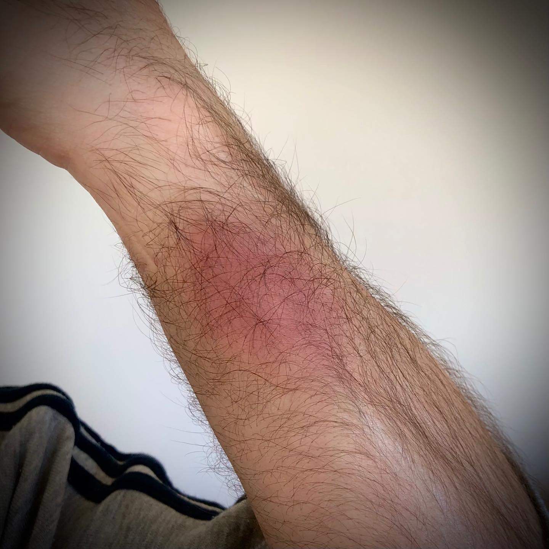 Cuando ayer me dolía la muñeca, por algo era  #lesiones #deporte